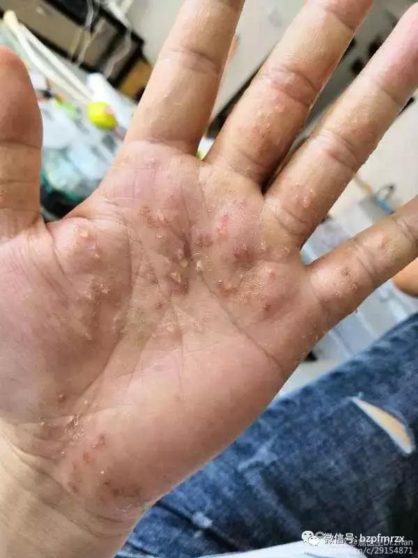 你对汗水疱疹了解多少?